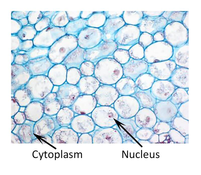 Photo of parenchyma cells pointing out cytoplasm and nucleus.